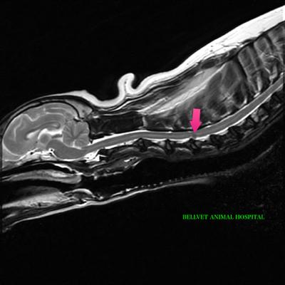 MRI T2WI SAG (1)